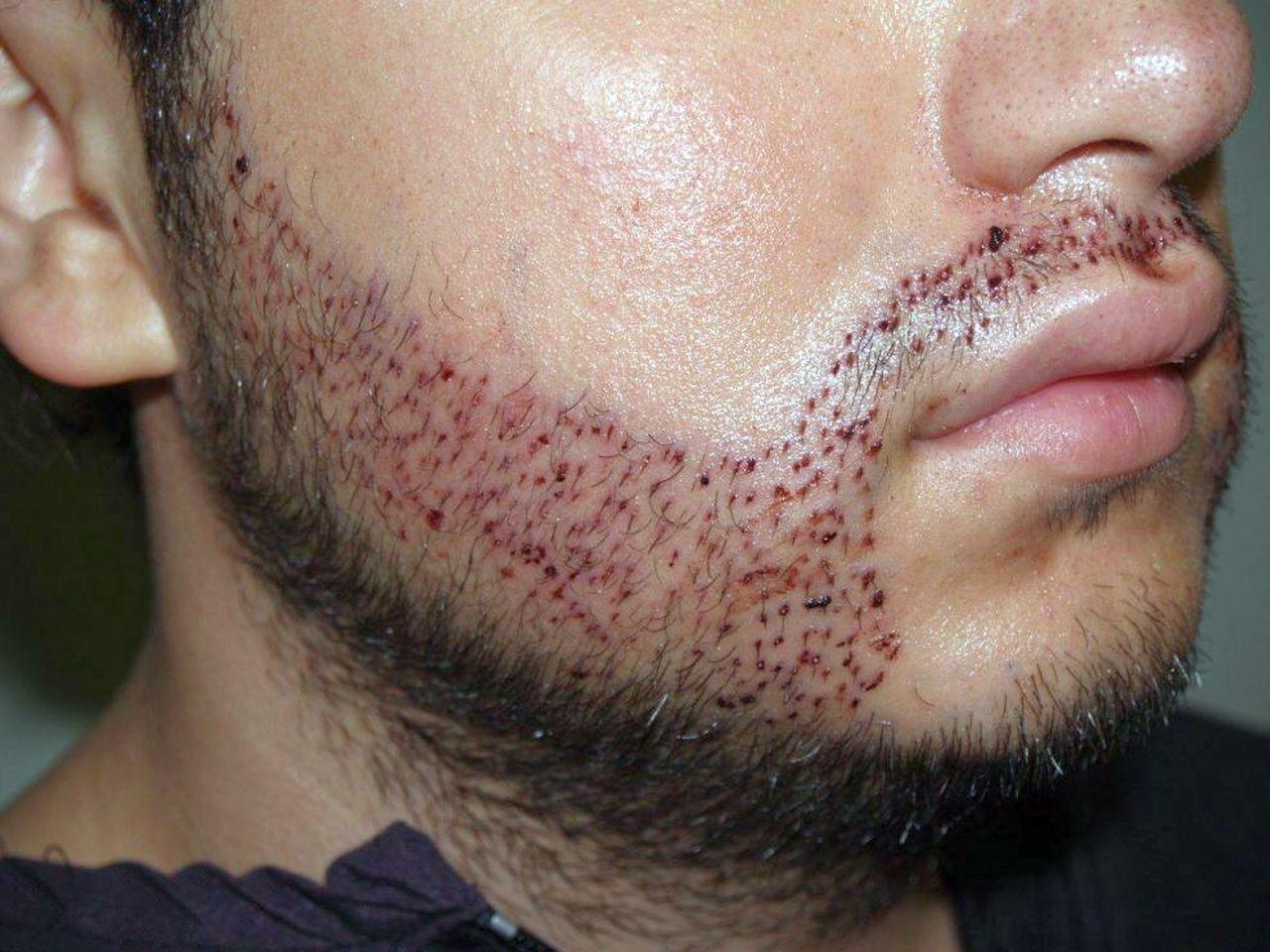 Trapianto di barba: ecco cosa succede quando va male