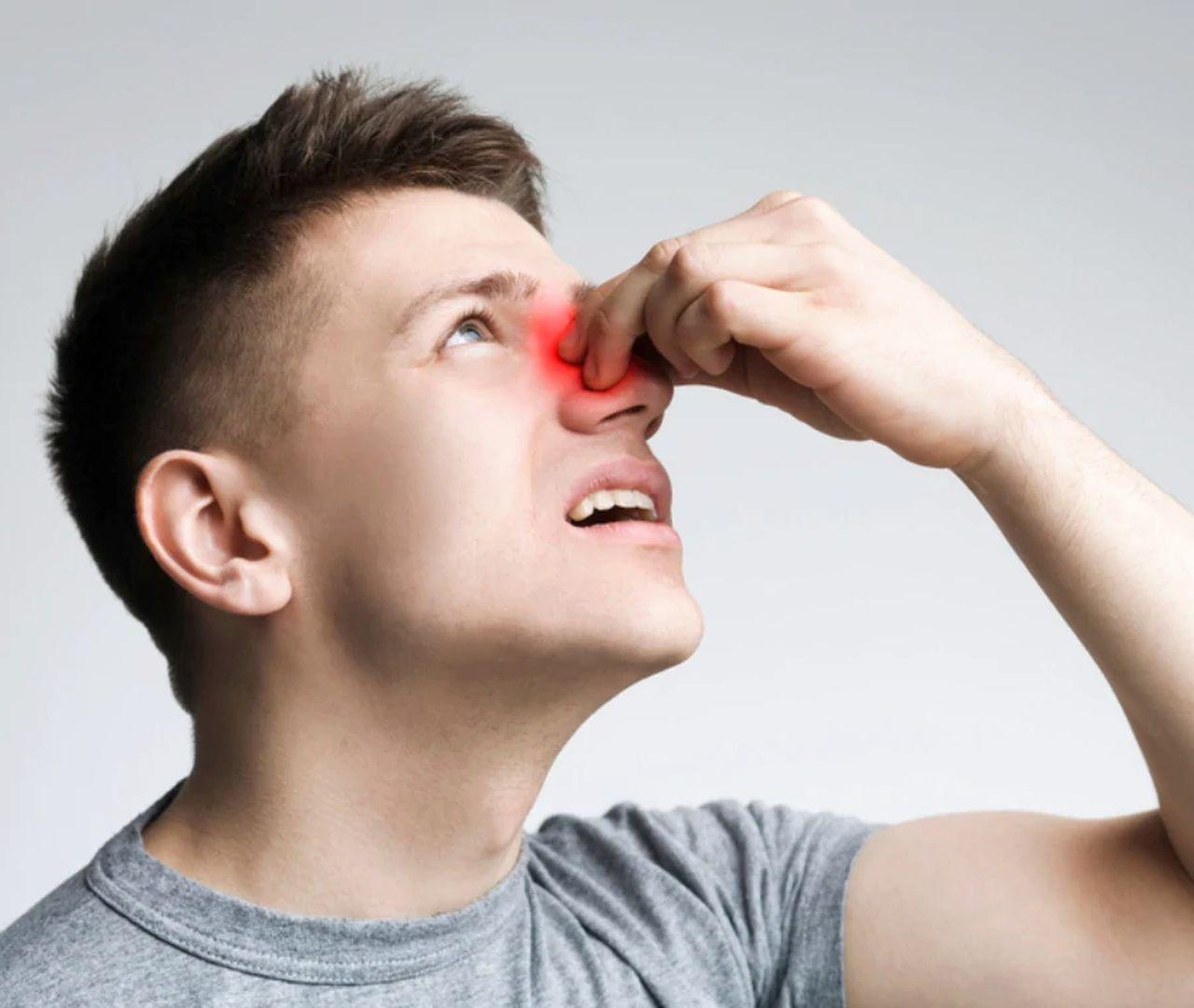 Sangue dal naso, può essere il segnale di un serio disturbo: le cose da sapere